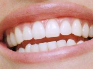 когда удалять зуб мудрости